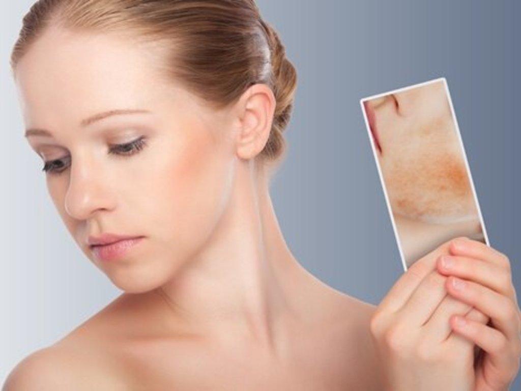 Dermatitis Por Estrés Cómo Reconocerla Y Tratamiento Diario El Sol Mendoza Argentina